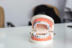 W jakim wieku najlepiej rozpocząć leczenie ortodontyczne?